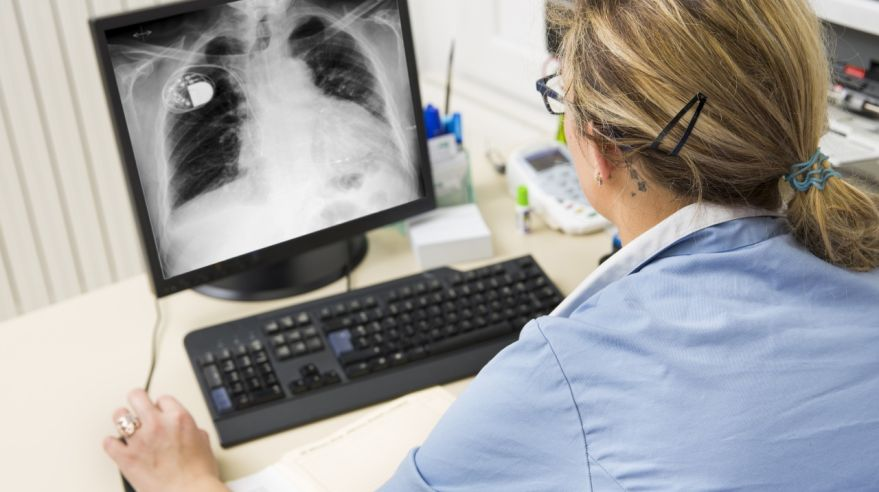 Nurse at work,watching X-ray picture on monitor